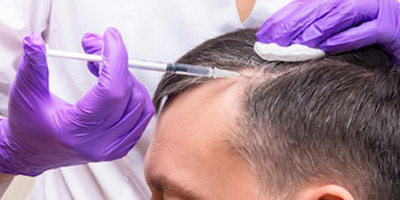 PRP Hair Loss Therapy