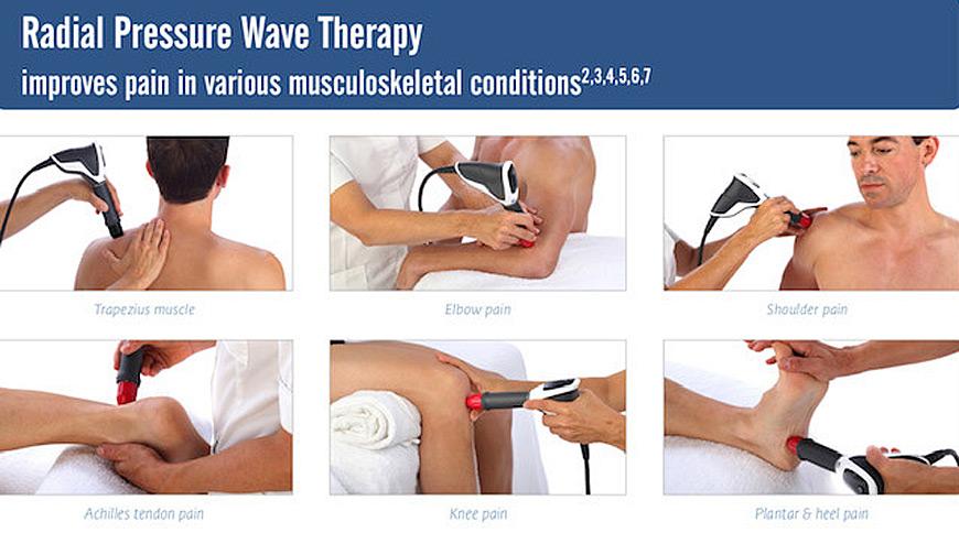 Radial Pressure Wave Therapy
